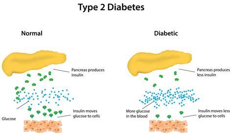Thesis diabetes type 2 jpg 5973x3488
