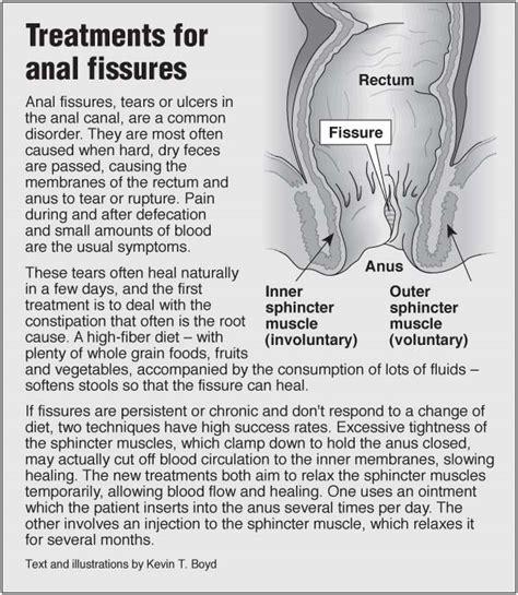 Anal fissure treatment, symptoms, medicine, diet relief jpg 600x690