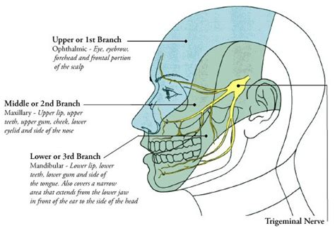 persistant head and facial pain jpg 546x373