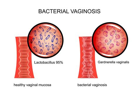 6 ways to cure vaginal infections without using medications jpg 1000x667